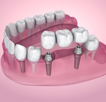 dental implant bridge illustration