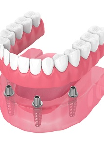 Illustration of implant-retained dentures in Jonesboro against white background